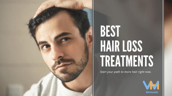 Best Hair Loss Treatments